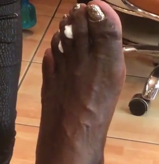 d6ffbbb44718d3 NBA Player Feet: What's up with them Nasty Toes? - Pulledmygroin ...